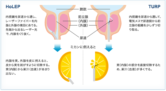 肥大 症状 前立腺